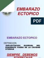Tema 17 Embarazo Ectopico