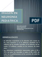 Imagen en Neumonia Pediátrica