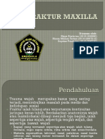 Fraktur Maxilla