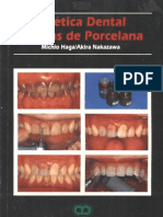 Estetica Dental Carillas de Porcelana