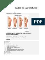 Generalidades de Las Fracturas