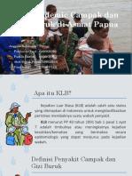 Analisis Bencana KLB Campak dan Gizi Buruk