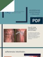 Adherencias Intestinales y Volvulos