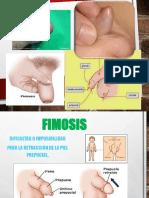 FIMOSIS expo.pptx