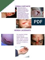 Herida Cortante y Lacerante