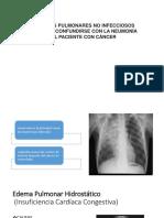 Infiltrados Pulmonares No Infecciosos Que Pueden Confundirse Con