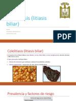 colelitiasis-140304013432-phpapp01