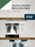 Radiologi Thorax Tuberkulosis Paru