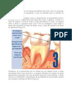 A periodontite é a fase da doença periodontal que teve início no processo inflamatório na gengiva.docx