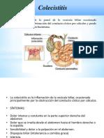 COLECISTITIS colelitiasis  2017 (1).pptx