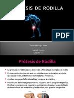 protesisrodilla-130521220750-phpapp01