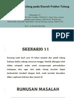 pbl Sken 11