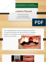 Avulsion Dental