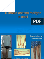 3. Tumori Osoase Prezentare