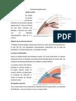 Resúmenes de oftalmología