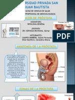 Cáncer de Próstata Ppt