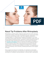 Nasal Tip Problems After Rhinoplasty