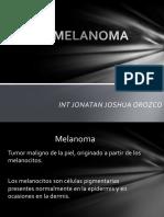 1 Melanoma