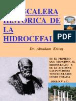 historiadehidrocefalia-1213618152790722-8.ppt
