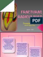 FRACTURAS RADICULARES