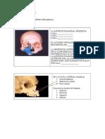 Cuestionario de Anatomia No 2 Huesos de La Cara