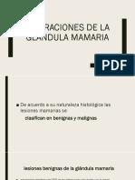 Alteraciones de La Glandula Mamaria
