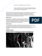 cervicobraquialgia