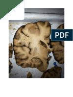 Preparate Creier Anul III