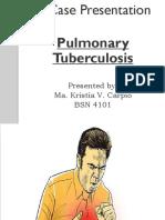 Kristia Carpio Pulmonary Tuberculosis