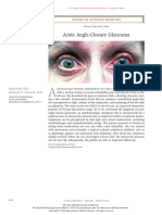 Acute Angle-Closure Glaucoma (1)