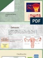 Embarazo Ectopico GyO