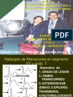 Exp.ekg Infarto Miocardio 2018