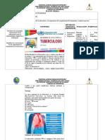Charla Tuberculosis