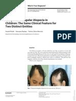 Alopecia Triangular Temporal Karger