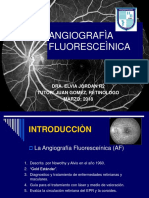 Angiografía Fluoresceìnica
