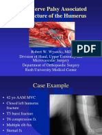 Humerous Fxs With Radial Nerve Palsy