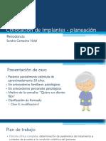 Colocación de Implantes - Planeación
