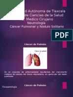 Cancer Pulmonar y Nodulo Solitario