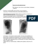 Patrones de Enfermedad Pulmonar