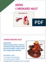 Akut Miokard Infark Ppt