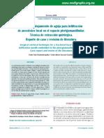 Fractura y alojamiento de aguja para infiltración de anestésico local en el espacio pterigomandibular.Técnica de extracción quirúrgica. Reporte de caso y revisión de literatura.pdf