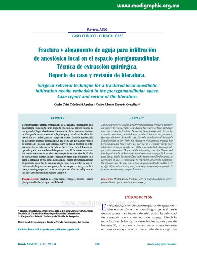 Fractura y alojamiento de aguja para infiltración de anestésico ...