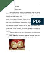 Fluorose Dentária - Etiopatogenia, diagnóstico diferencial, medidas preventivas e tratamento