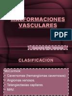 MALFORMACIONES ARTERIO-VENOSO
