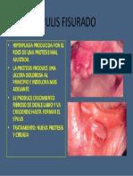 EPULIS.pdf