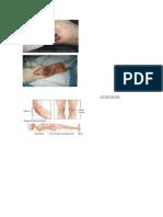 Gambar Pressure Ulcer