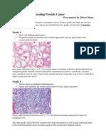 Gleason System of Grading Prostate Cancer