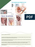 Que Es Cancer de Prostata
