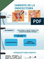 apedicectomia