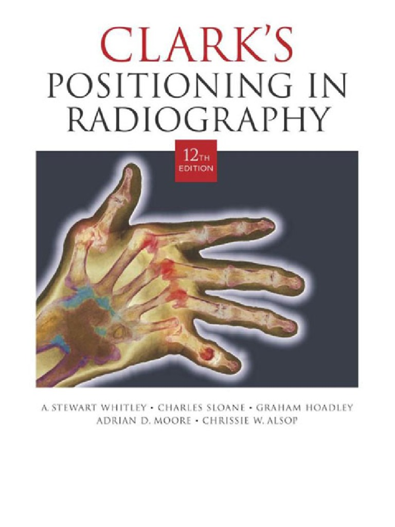 Clark s positioning in radiography 12th edition anatomical terms clark s positioning in radiography 12th edition anatomical terms of motion anatomical terms of location fandeluxe Images